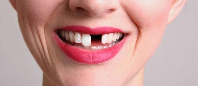 perte-dent