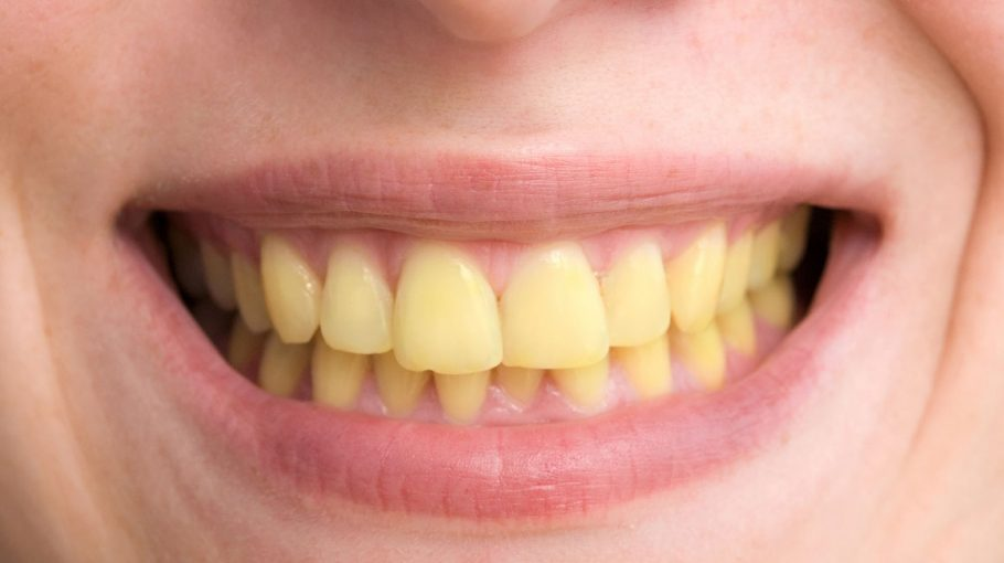 Très Prévention et hygiène Archives - Zone Dentaire BK56