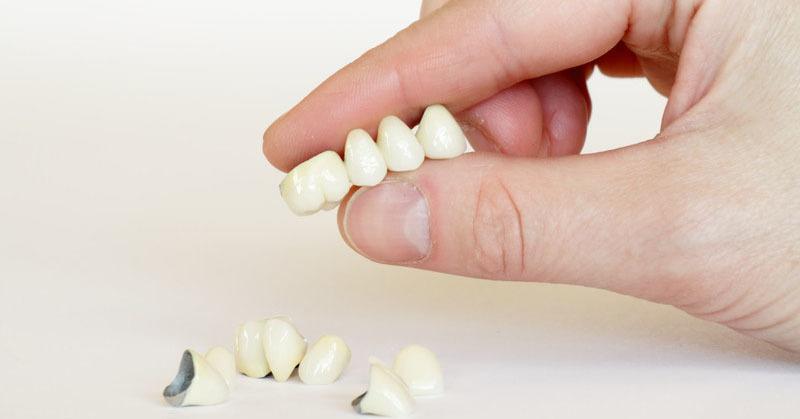 perte-des-dents