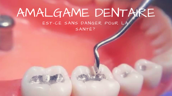amalgame-dentaire