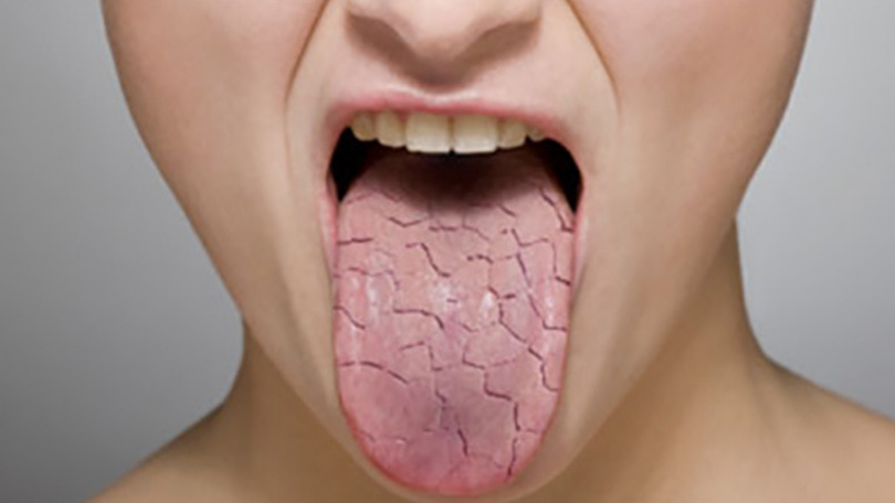 xerostomie-bouche-seche