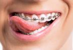 bague-dentaire