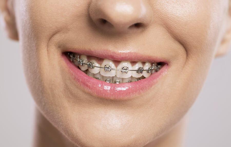 appareil dentaire blanc