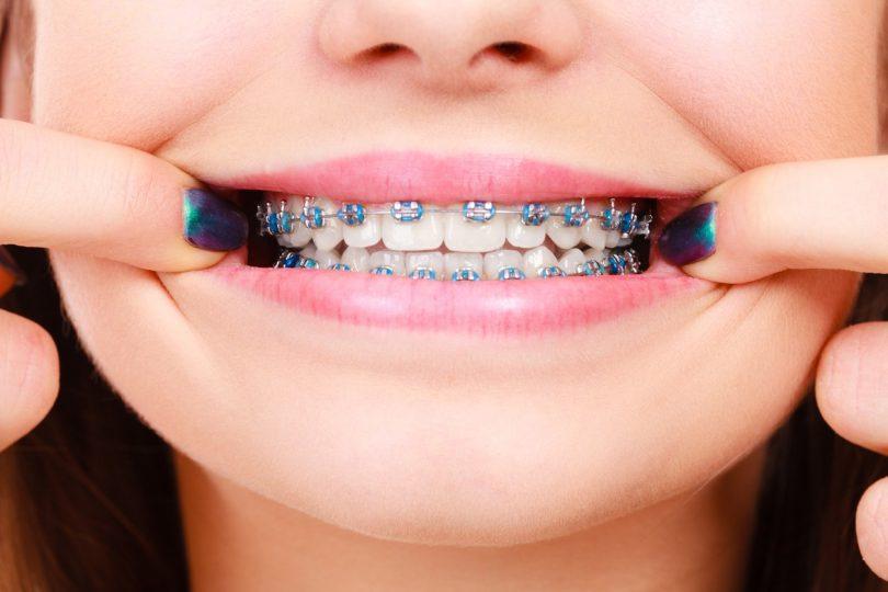 appareil-orthodontique